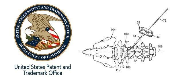 Spinal Facet Bone Screw Patent