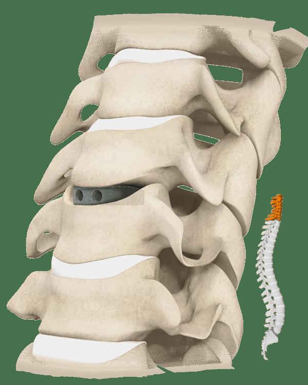 Cavetto Phusion Metal Spine