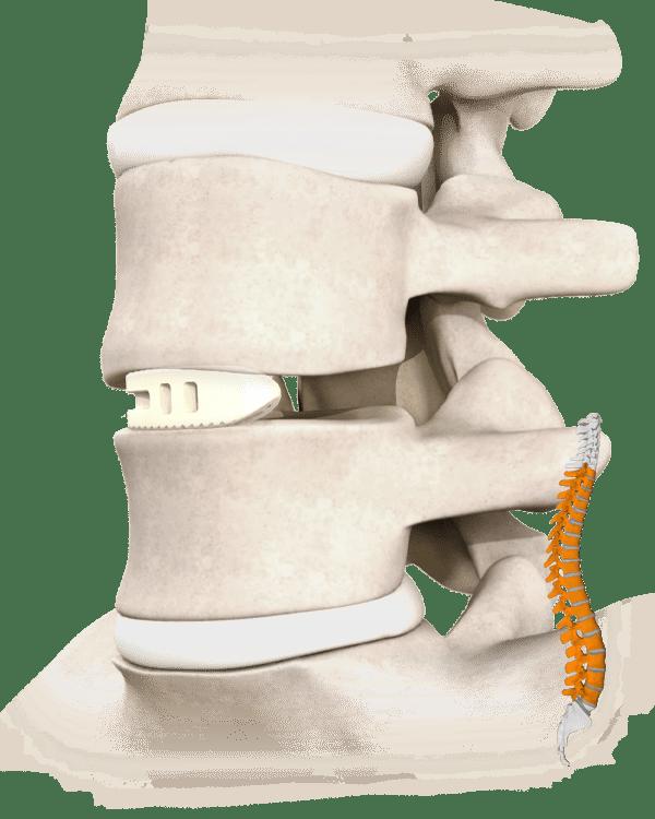 Cantonale Spine