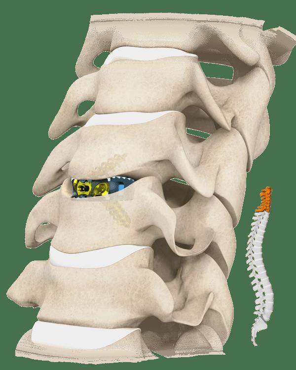 Cavetto-SA Spine