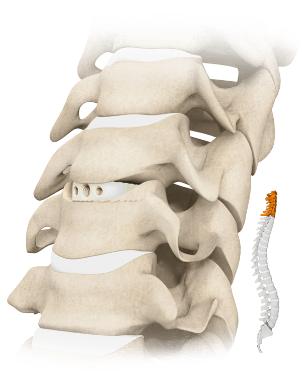 Cavetto Spine
