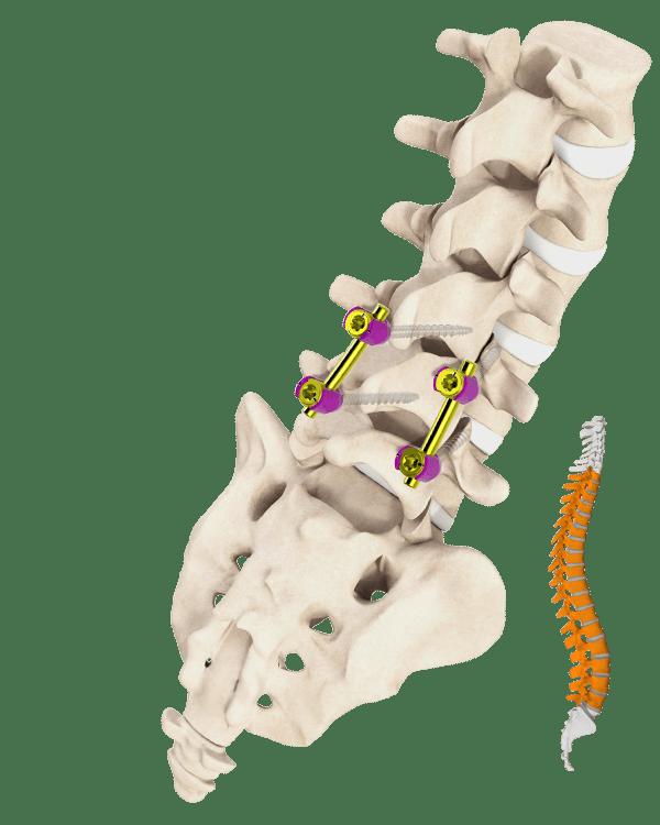 Controvolte Spine