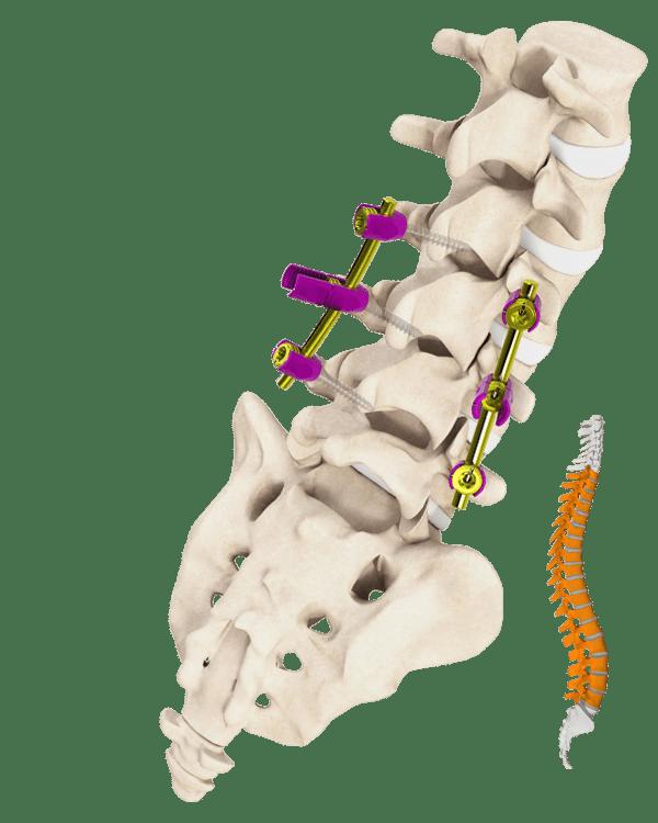 Palladian Spine