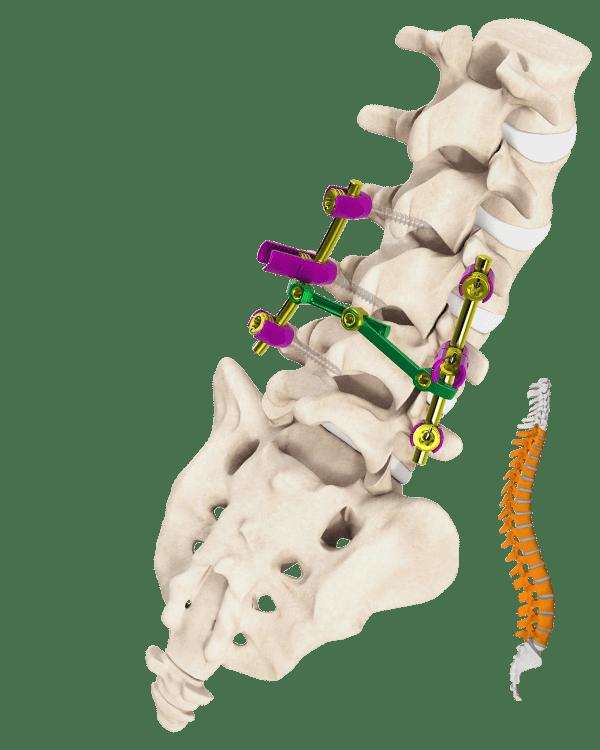 Palladian Cross Connector Spine