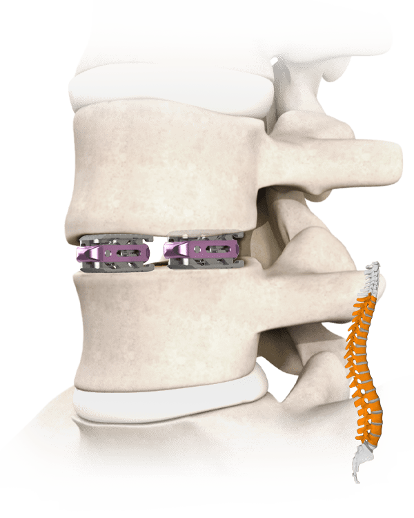 Pronaos Spine