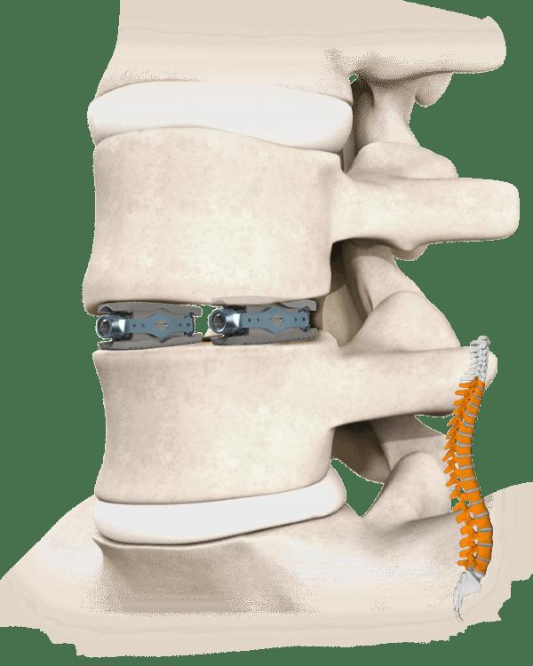 Pylon Spine