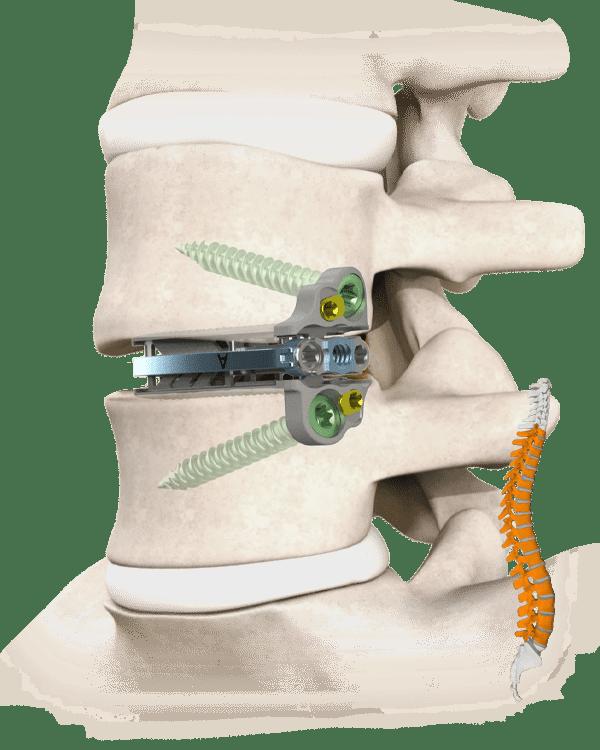 Torus-SA Spine