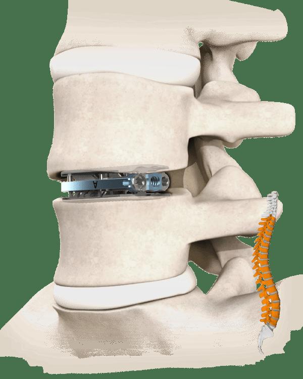 Torus Spine