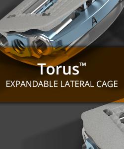 Torus Expandable Lumbar Cage